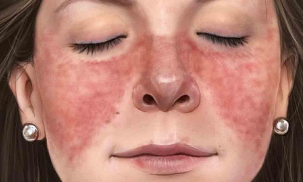 بیماری لوپوس پوستی | مرکز خدمات پرستاری پارسیان مهرپرور