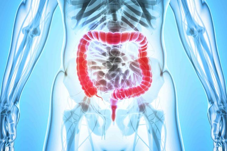 علل سرطان روده بزرگ | مرکز خدمات پرستاری پارسیان مهرپرور
