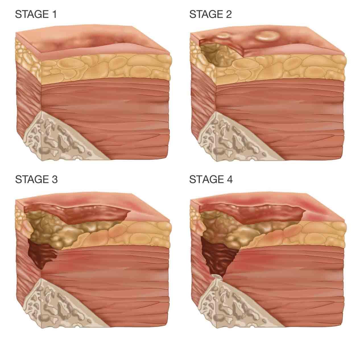 مراحل ایجاد زخم بستر | مرکز پارسیان مهرپرور