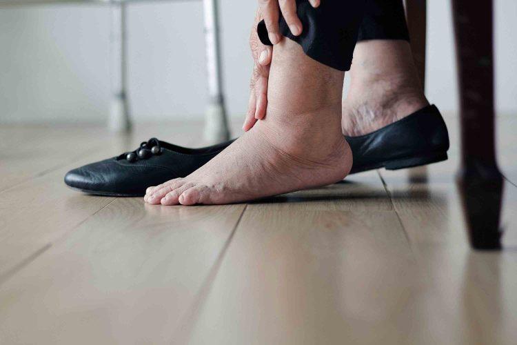 ورم پا در سالمندان | مرکز پارسیان مهرپرور